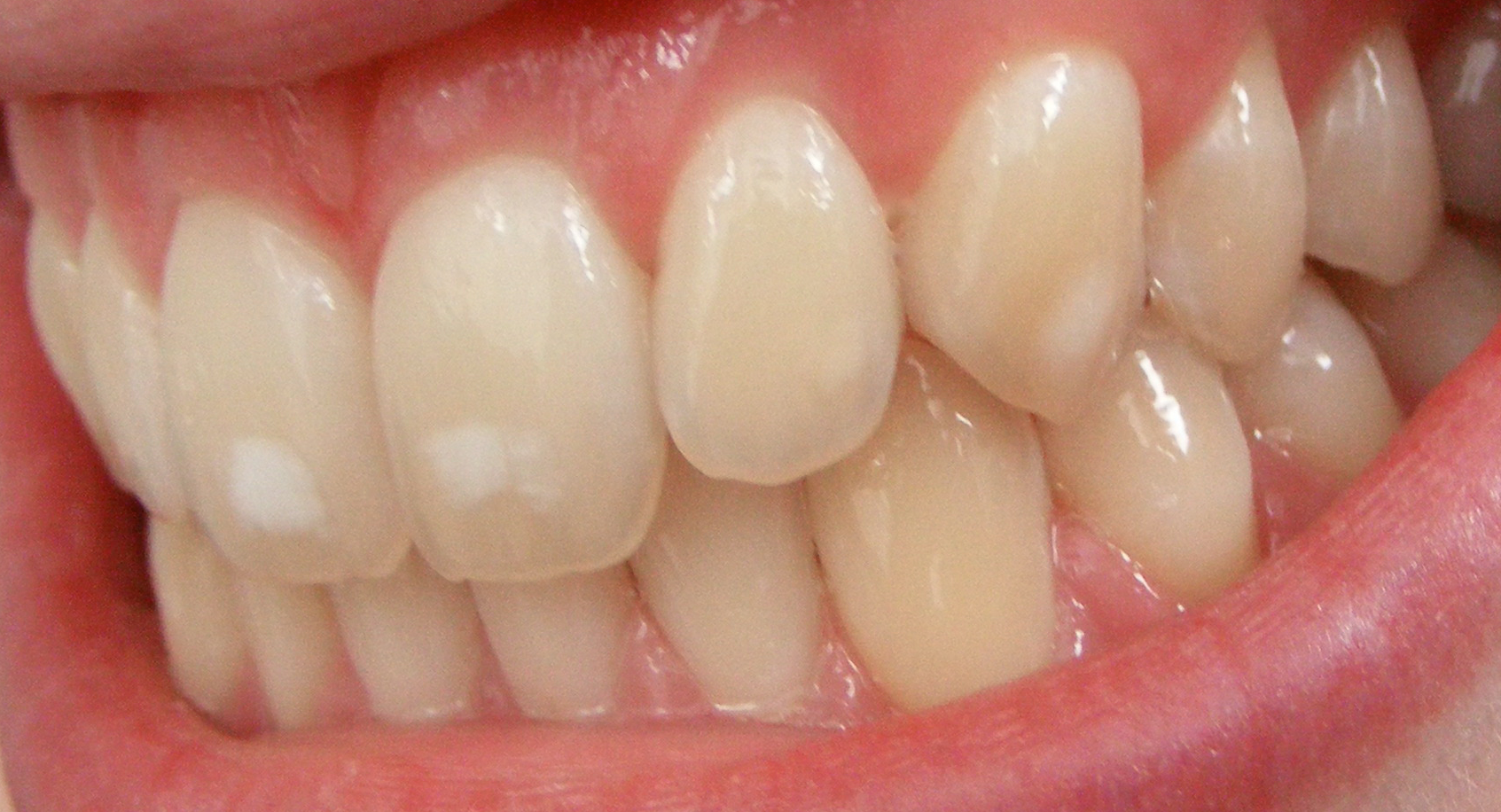 Teeth with hypomineralisation By Matthew Ferguson 57 CC BY-SA 4.0, from Wikimedia Commo