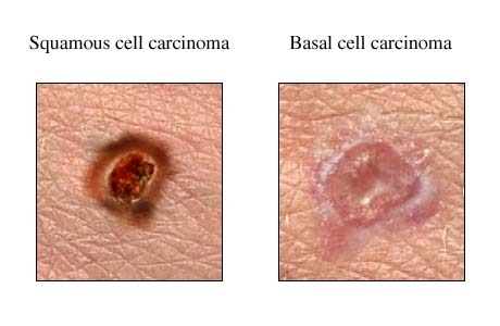 Australian Researchers Find 45 New Genetic Causes Of Non Melanoma Skin Cancers Scimex