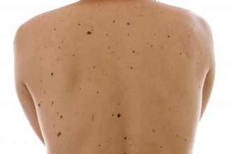 University of Queensland scientists have identified a way to help dermatologists determine a patient's risk of developing melanoma. The team uncovered the specific gene variations affecting the number and types of moles on the body and their role in causing skin cancer.