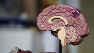 Men and women have a similar risk of experiencing a stroke, but men have 2-3 times the risk of traumatic brain injury, according to two large New Zealand studies. The BIONIC and ARCOS-IV studies, which have studied 170,000 and 1.1 million New Zealanders respectively, found traumatic brain injury was more than five times more common than stroke, with Māori and Pasifika having a higher risk of both types of condition through most of their lives.