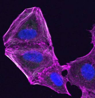 A drug resistant melanoma cell that has altered its cytoskeleton
