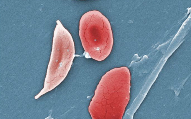 Sickle_Cells By OpenStax College - Anatomy_Physiology, CC BY 3.0