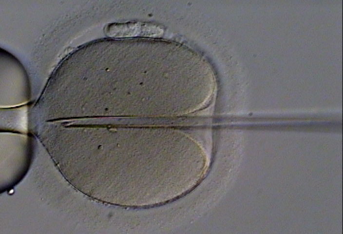A human oocyte is held by a glass holding pipette (left). A beveled glass pipette containing an immobilized ejaculated spermatozoon is inserted through the zona pellucida and deep into the oolemma, creating a deep furrow. Once the membrane of the oocyte is penetrated, the sperm is deposited therein. Photo credit: Eugene Ermolovich (CRMI)/Wikipedia Commons