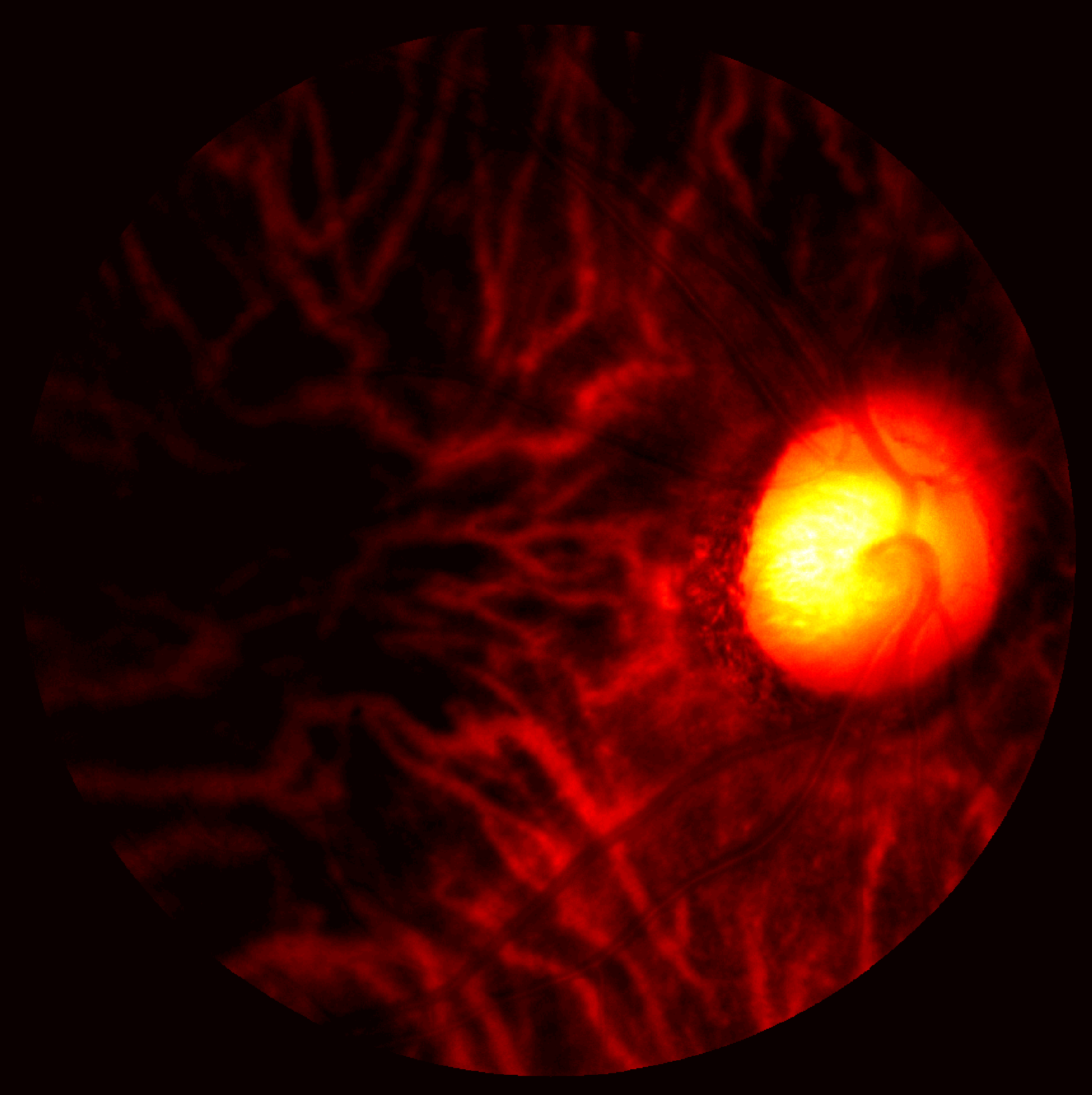 An illustration of an image of the retina captured by hyperspectral imaging at 700nm wavelength.