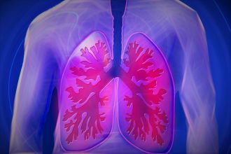 People who are diagnosed with the most common form of asbestos-related lung disease are not at an increased risk of developing lung cancer later in life, a new study led by Curtin University has found.