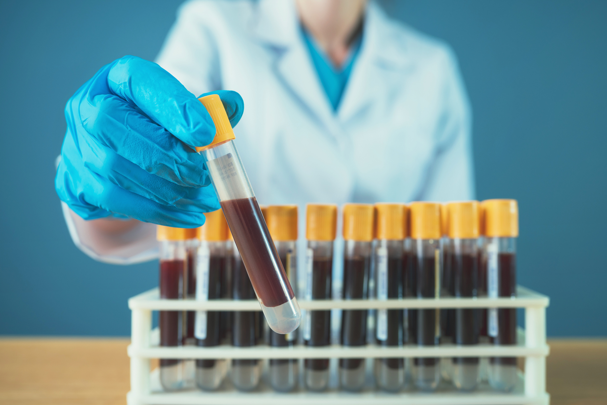 Test Measures Immune Response To Improve Ovarian Cancer Diagnosis Scimex
