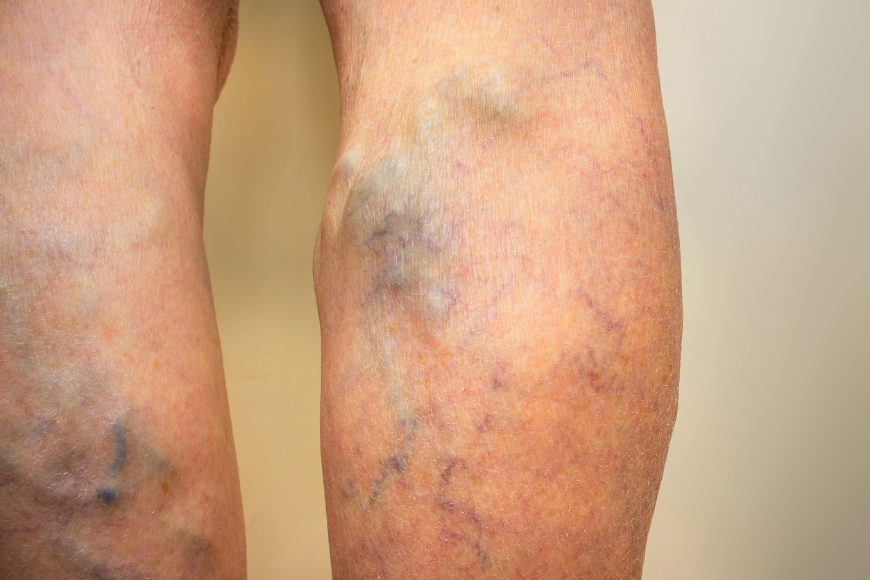 Can Varicose Veins Increase Risk Of Blood Clot Scimex
