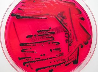 Samples of the bacteria that cause typhoid fever in travellers returning from overseas could be used to warn of emerging global threats such as antibiotic resistance and disease outbreaks abroad, say Australian scientists. In countries where typhoid fever is most common, lab testing of the bacteria is not routine, making it hard to track emerging resistance to antibiotics. Australian and UK researcher have instead used samples of people returning from abroad to the UK to paint a global picture of typhoid infections. They found that around a quarter of samples were already multi-drug resistant, and those were largely linked with travel to 10 countries in South Asia, East Africa and West Africa.