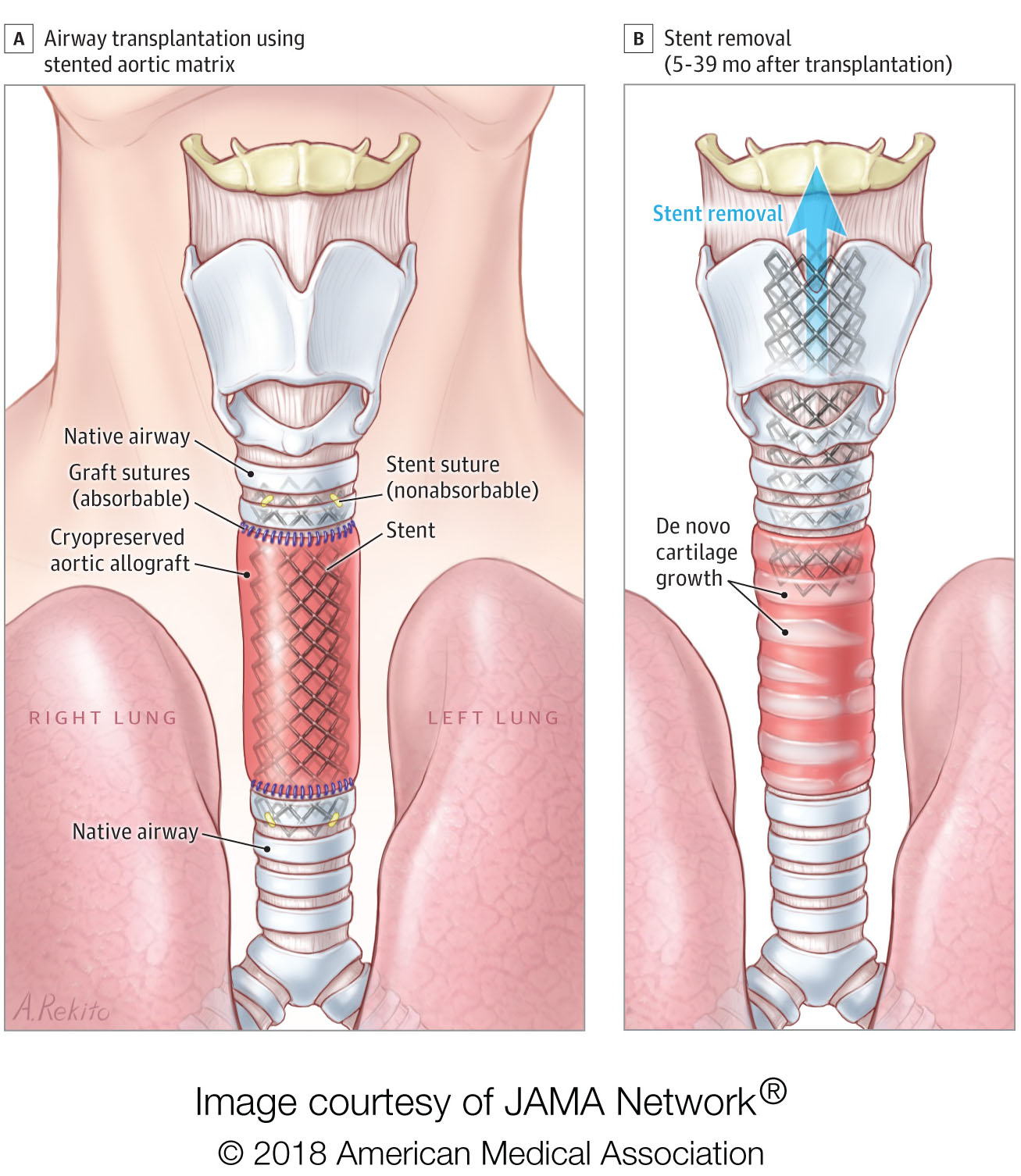 Rebuilding Airways With Arteries After Surgery Scimex